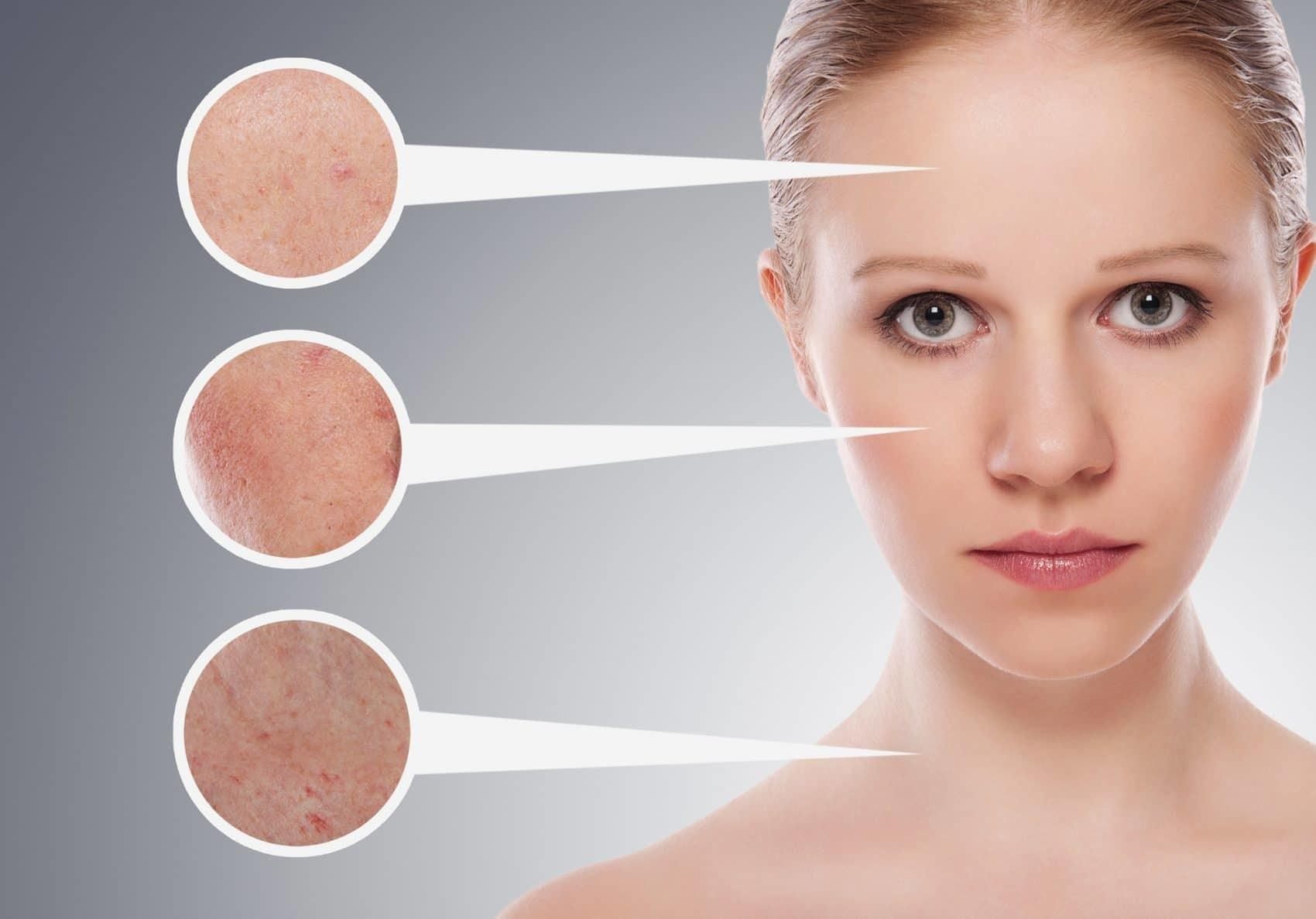 La photobiomodulation ralentit le vieillissement cutané