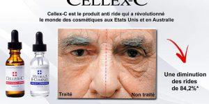 Photos-avant-apres-cremes-cellex-c-photobiomodulation-avis