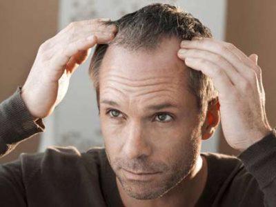 traitement-cheveux-led-photobiomodulation-500X334