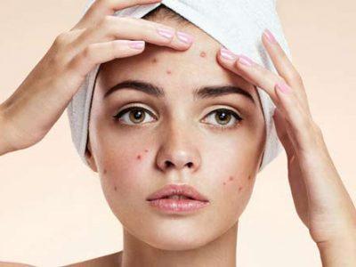 traitement-de-l-acne-par-la-led-photomodulation-500x334
