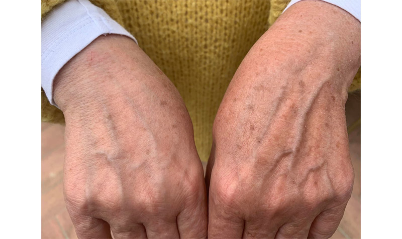 Mains-avant-apres-photobiomodulation-body-boost-bed