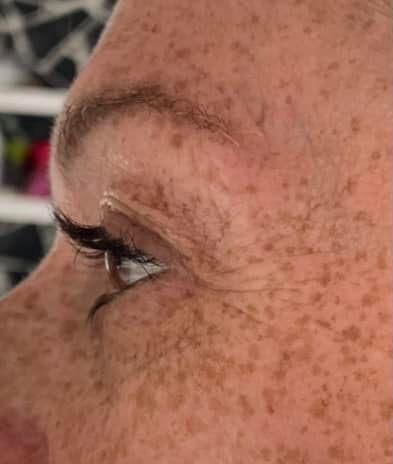 Visage-avant-apres-photobiomodulation-body-boost-bed