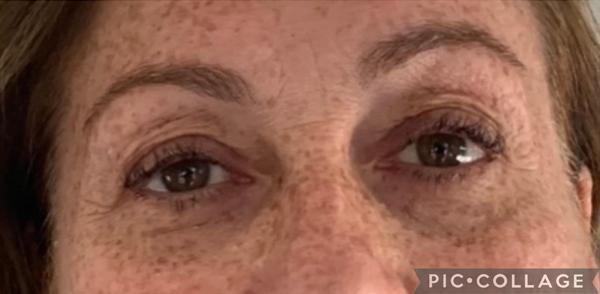 Visage-lumiere-rouge-avant-apres-photobiomodulation-body-boost-bed-2