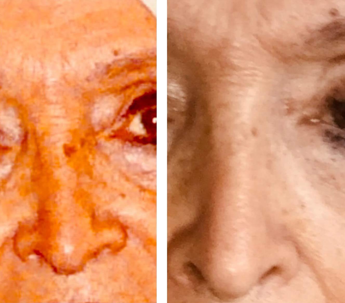 avant-apres-phototherapie-photobiomodulation-avis-temoignage-main-taches-brunes-visage-femme