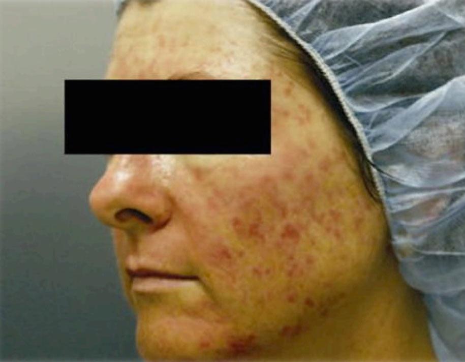cicatrices-avant-photobiomodulation-cabine-à-leds-avant-915x712
