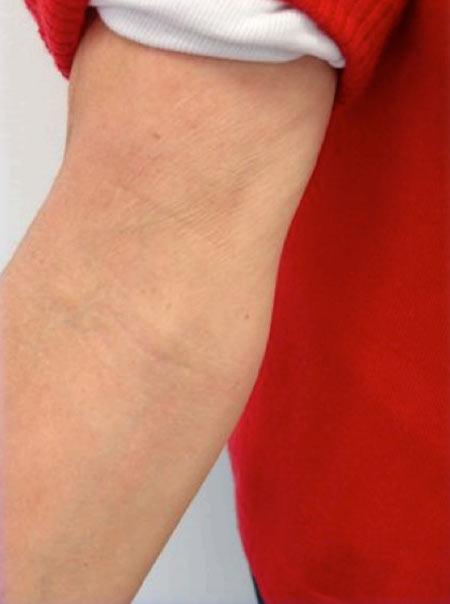 eczema-bras-avant-après-séance-de-photobiomodulation-cabine-à-leds-après-450x604