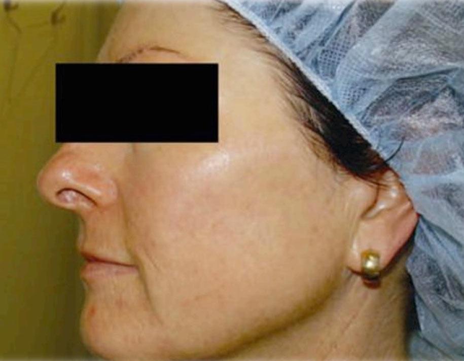 réparation-de-la-peau-avant-après-séance-de-photobiomodulation-cabine-à-leds-après