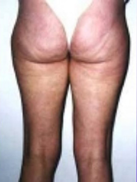 traitement-cellulite-avant-après-photobiomodulation-cabine-à-leds-avant séance